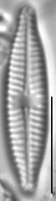 Navicula trilatera LM5