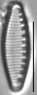 Nitzschia alpina LM1