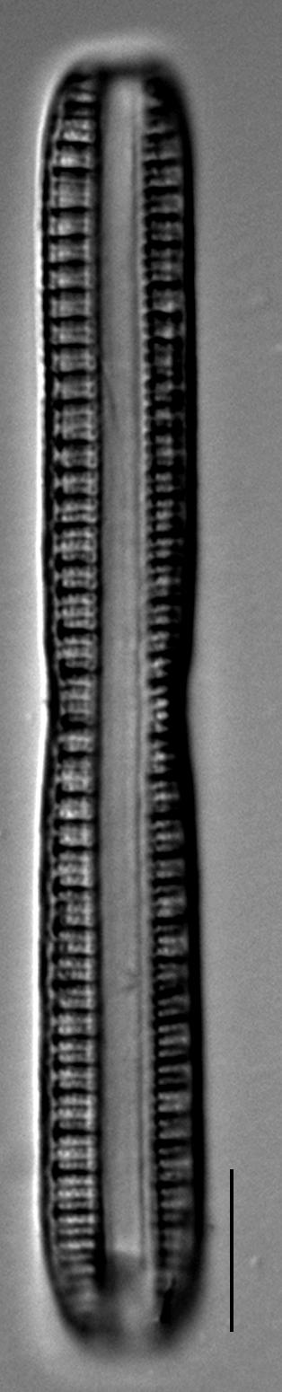 Nitzschia serpentiraphe LM2