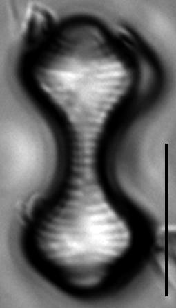 Oxyneis binalis LM1