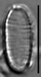 Oxyneis binalis var elliptica LM6