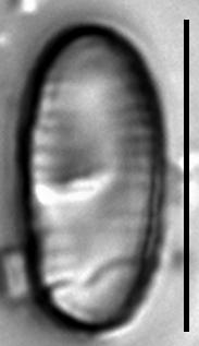 Oxyneis binalis var elliptica LM4