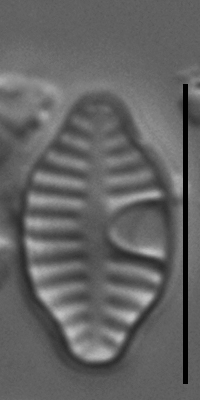 Planothidium rostratoholarcticum LM5
