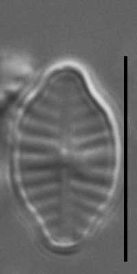 Planothidium rostratoholarcticum LM7