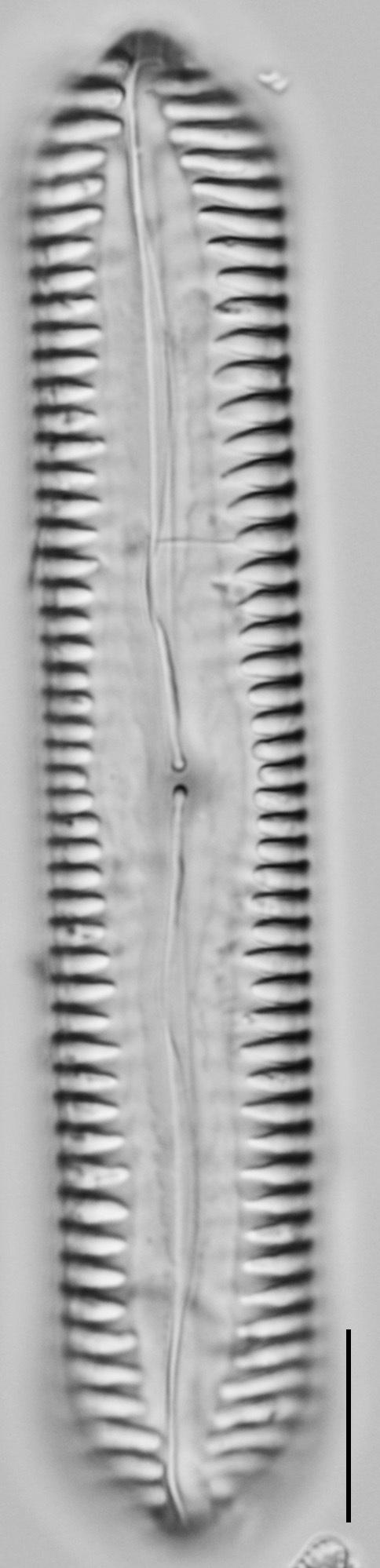 Pinnularia cuneicephala LM2