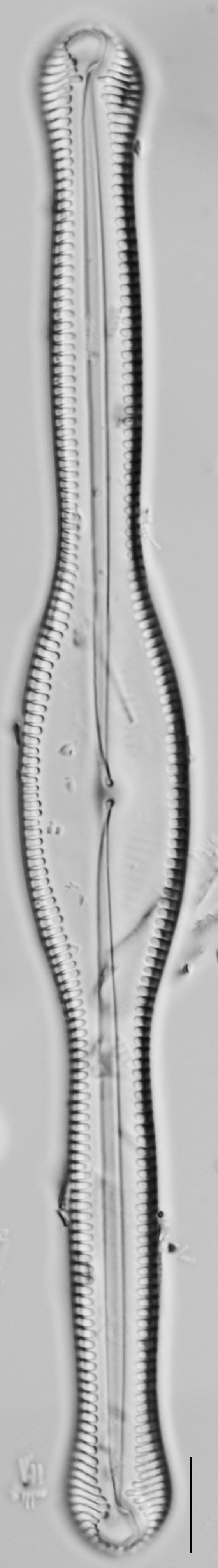 Pinnularia formica LM6