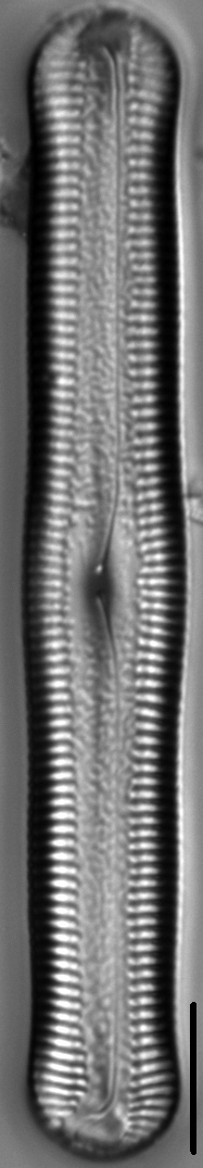 Pinnularia acrosphaeria LM7