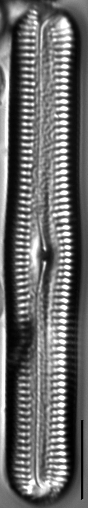 Pinnularia acrosphaeria LM3