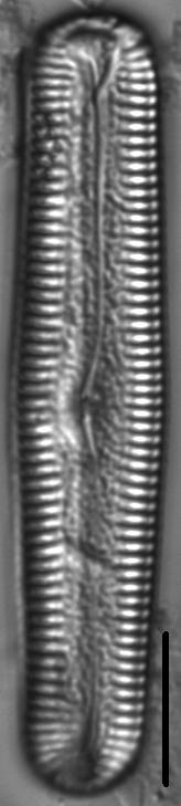 Pinnularia acrosphaeria LM1