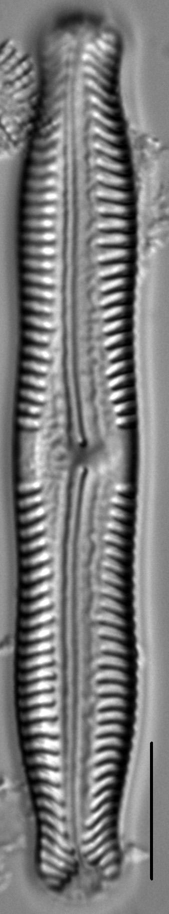 Pinnularia nodosa LM7