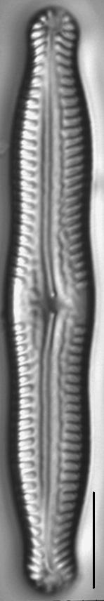 Pinnularia nodosa LM6