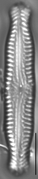Pinnularia nodosa var percapitata LM1