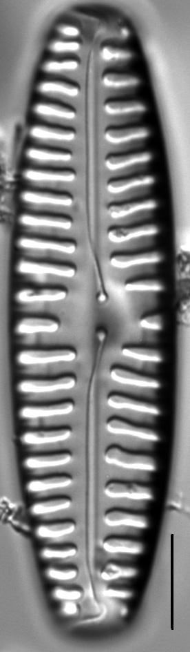 Pinnularia rabenhorstii LM5