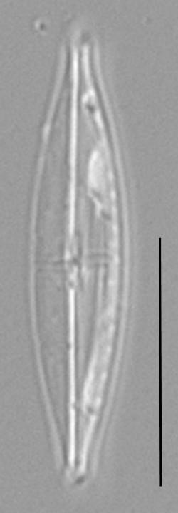 Proschkinia Browderiana Lm1
