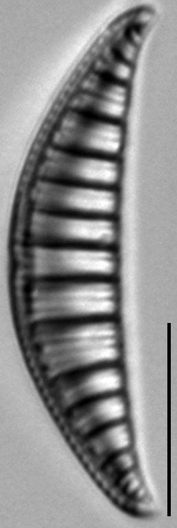 Rhopalodia gibberula LM9
