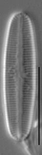 Rossithidium petersenii LM6