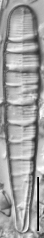 Meridion circulare var constrictum LM1
