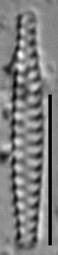 Staurosirella berolinensis LM6