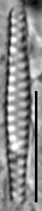 Staurosirella berolinensis LM5
