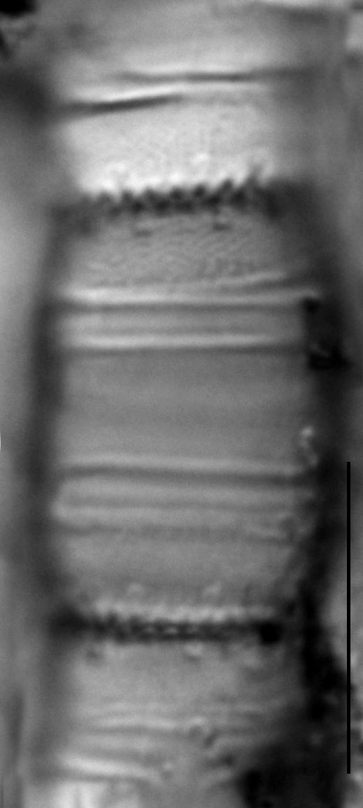 Stephanodiscus binderanus LM1