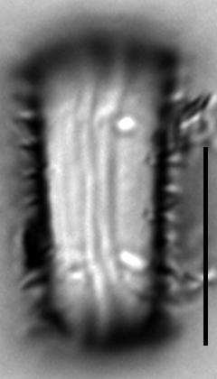 Stephanodiscus hantzschii f tenuis LM1
