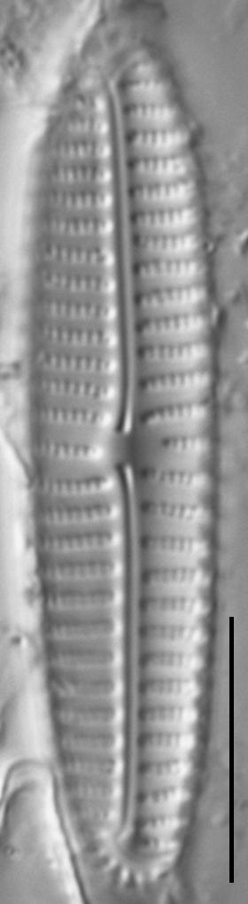 Encyonema appalachianum LM6