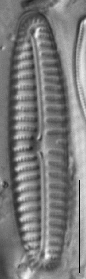 Encyonema appalachianum LM4