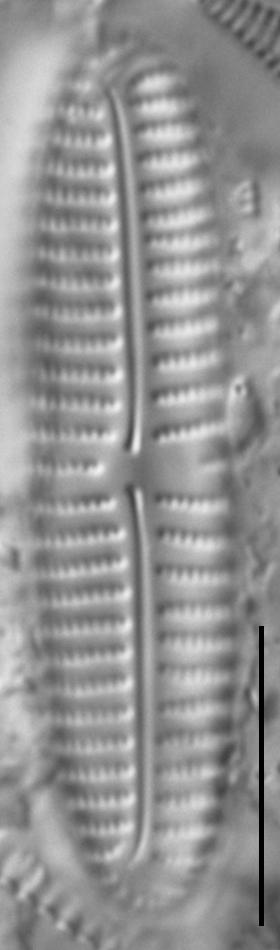 Encyonema appalachianum LM2
