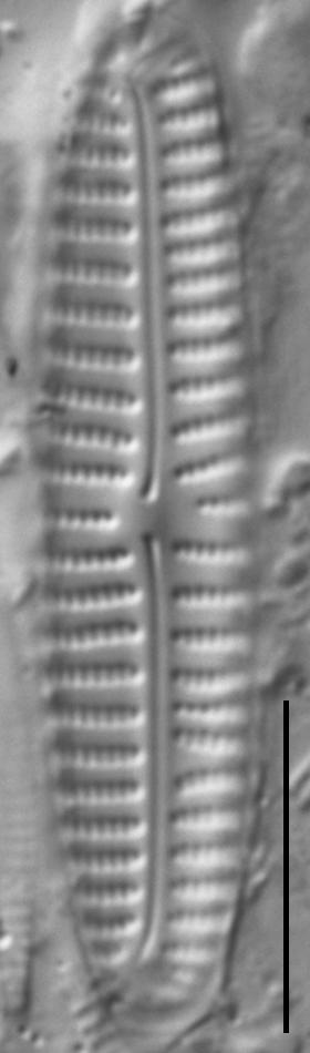Encyonema appalachianum LM1