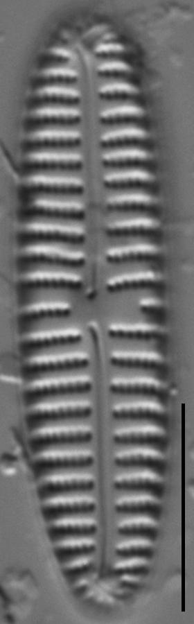 Encyonema appalachianum LM7