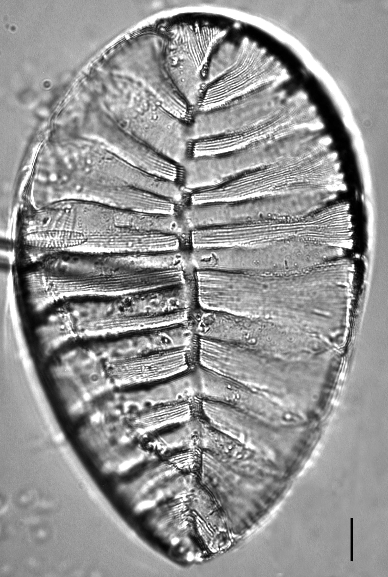 Surirella striatula LM9