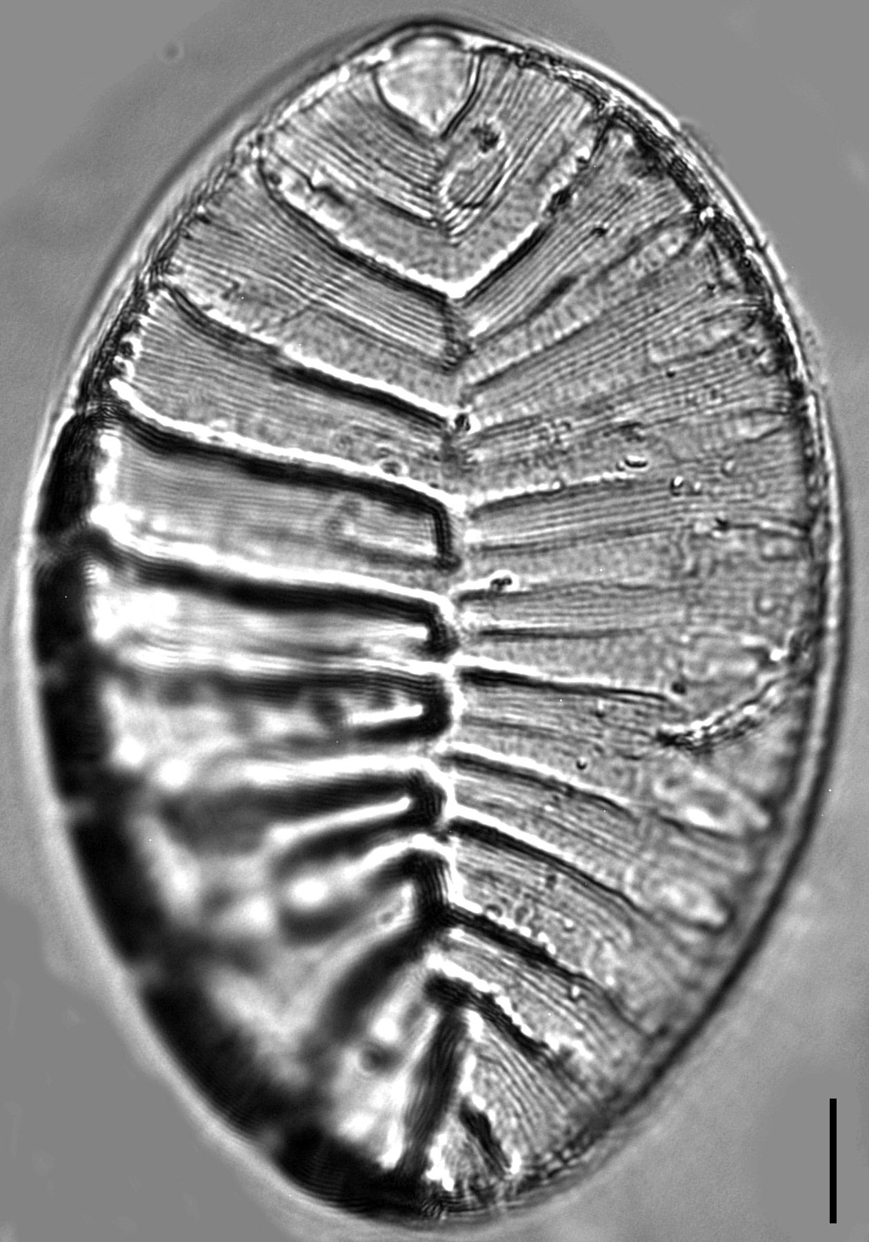 Surirella striatula LM7