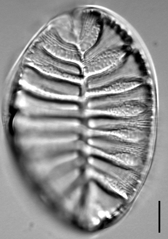 Surirella striatula LM6