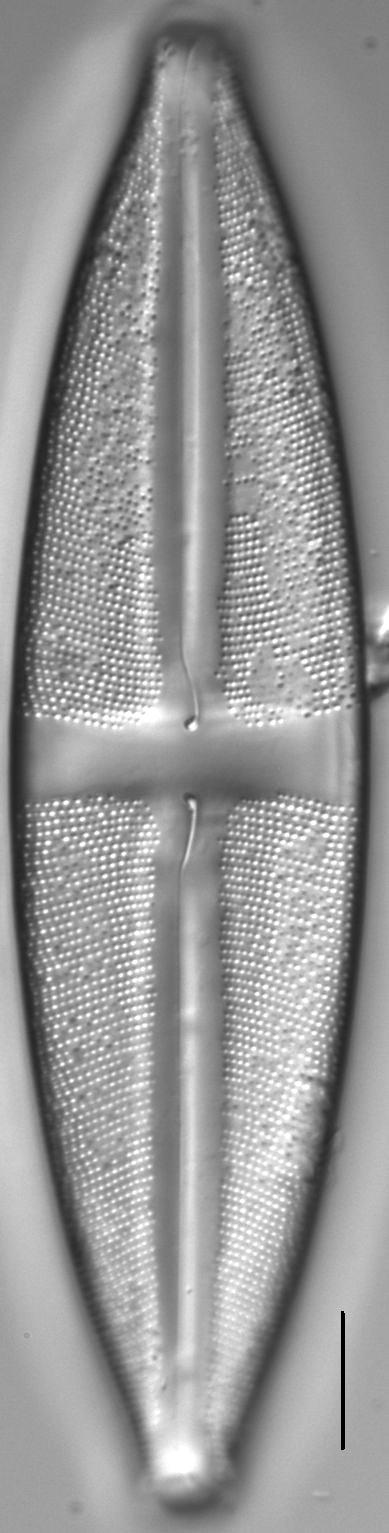 Stauroneis circumborealis LM2