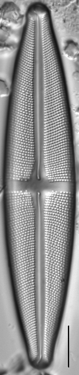 Stauroneis gracilis LM1