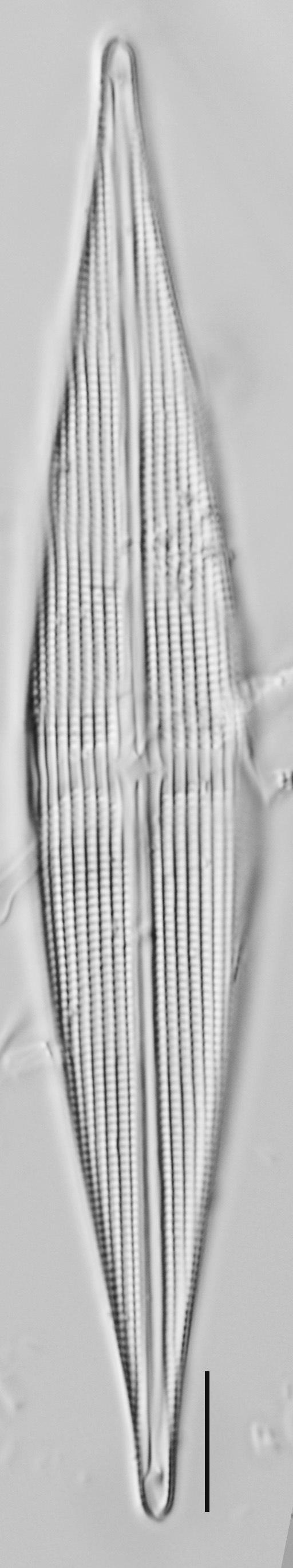 Stauroneis staurolineata LM5