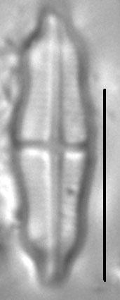 Stauroneis separanda LM3