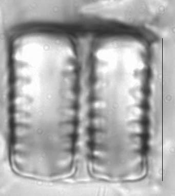 Staurosirella leptostauron LM5
