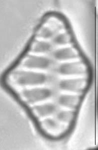 Staurosirella leptostauron LM3