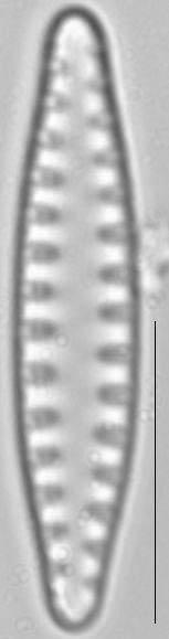 Staurosirella leptostauron var dubia LM4