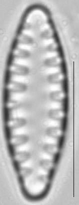 Staurosirella leptostauron var dubia LM3