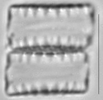 Staurosirella leptostauron var dubia LM2
