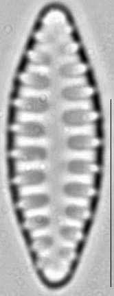 Staurosirella leptostauron var dubia LM1