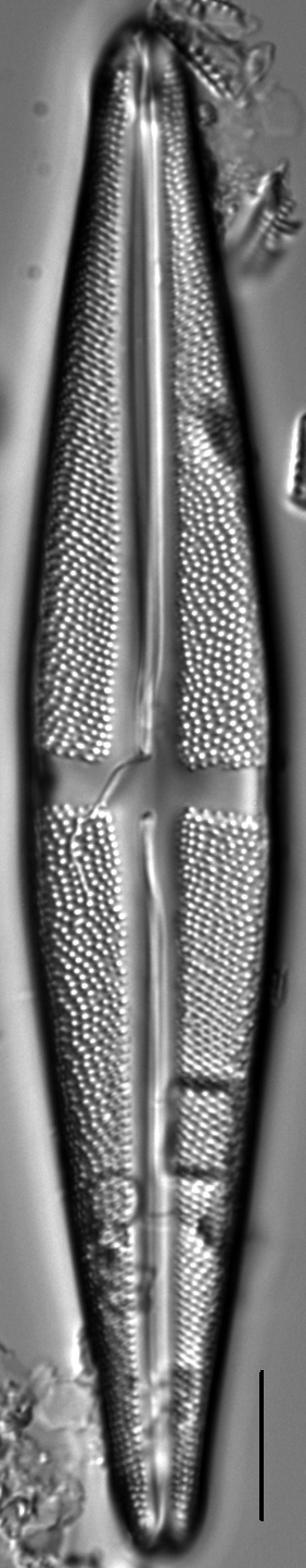 Stauroneis thompsonii LM5