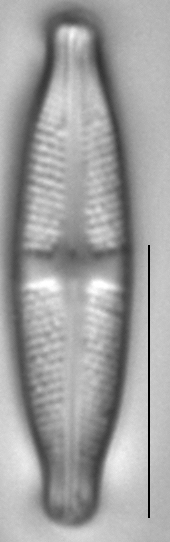 Stauroneis kriegeri LM1