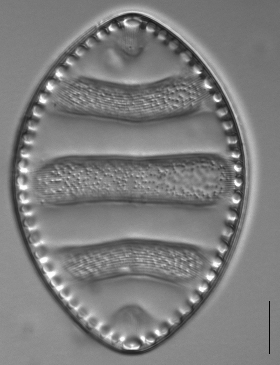Surirella undulata LM6