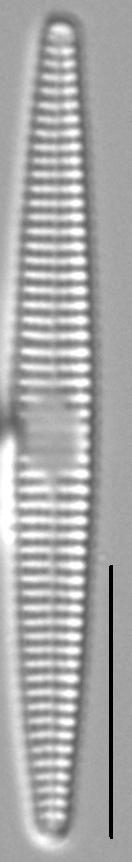Synedra famelica LM5
