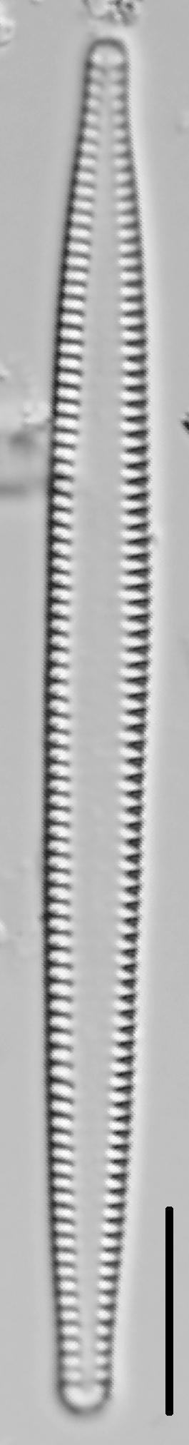 Tabularia fasciculata LM1