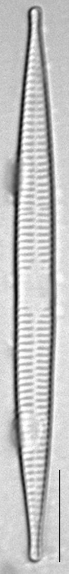 Ulnaria acus LM10