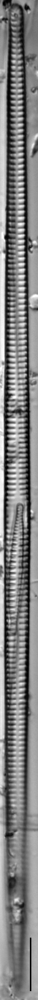 Ulnaria delicatissima LM19